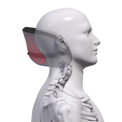 In-Built Occipital Shaping to Promote Head Realignment
